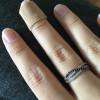 Panaricijum: gnojne rane na prstu