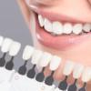Ako želite snežnobele zube…