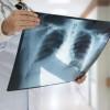 Plućna embolija ili infarkt pluća posledica je tromboze