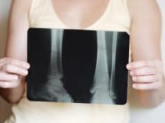 Gangrena i amputacija – pretnja kojoj se može stati na put