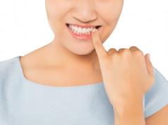 Bela dijeta za lepotu zuba