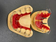Kako da održavate zubne proteze