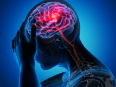 Otežan govor posle moždanog udara