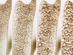 Osteoporoza – bolest krtih kostiju